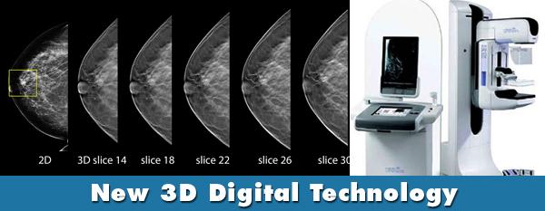 digital mammography tomosynthesis
