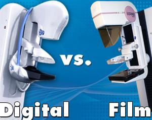digital mammography vs film mammography