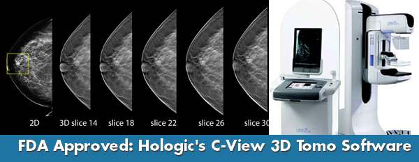 Hologic C View Approval