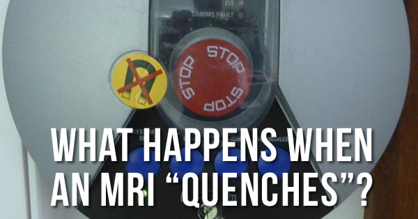 What-Is-an-MRI-Quench